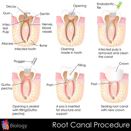 Root Canal Procedure Vector