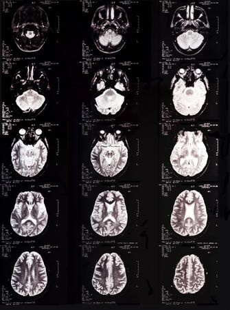 computer tomography: Computer Aided Magnetic Tomography of head. Stock Photo