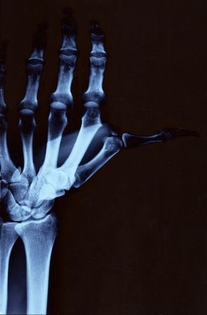 Left hand radiography with wrist and upper arm photo