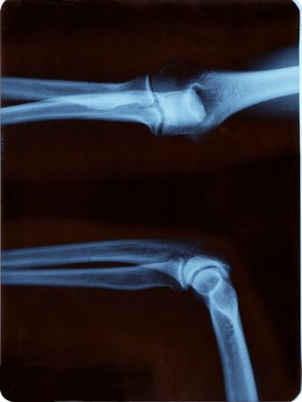 Radiografía derecha del codo. Posición abierta y cerrada Foto de archivo - 650663