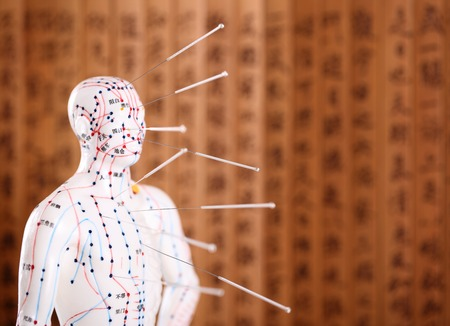 traditional healer: Eastern or Asian acupuncture Medical Treatment.Shallow Dof.