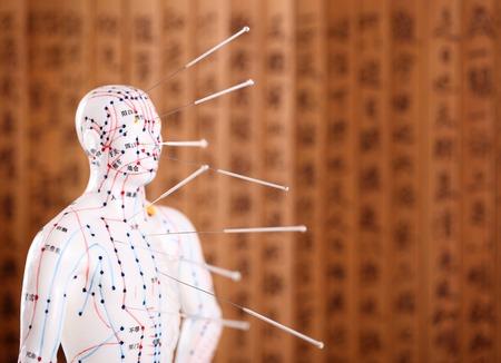 acupuntura china: Oriental o la acupuntura asiático Médico Treatment.Shallow DOF.