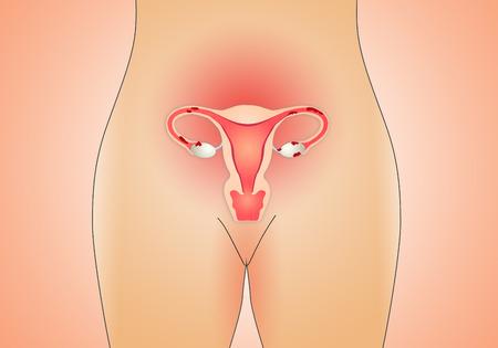 fight disease: Endometriosis in uterus Stock Photo