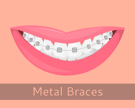 Dental braces, smiling lips in cartoon style isolated. Smile with braces, illustration on the topic of stomatology, orthodontics, teeth alignment, bite correction, vector illustration