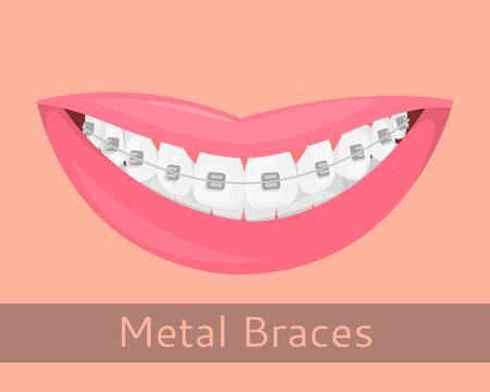Tandsteunen, die lippen in geïsoleerde beeldverhaalstijl glimlachen. Glimlach met steunen, illustratie op het onderwerp van de stomatologie, orthodontie, tandengroepering, bijtcorrectie, vectorillustratie Stock Illustratie