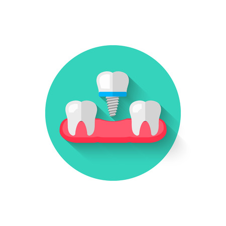 Tooth implant icon is isolated in a flat design style vector illustration. Modern, minimalist icon on the theme of stomatology in stylish colors. A website for mobile apps and other projects Çizim