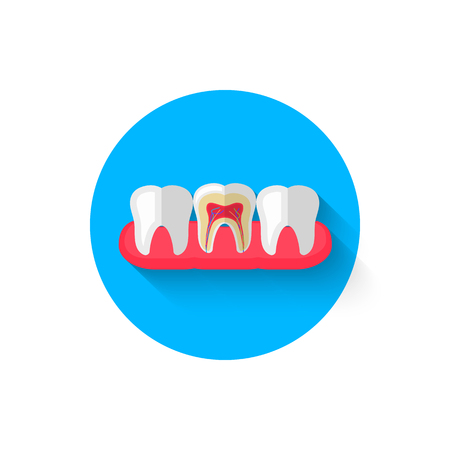 Tooth in the cut icon is isolated in a flat design style vector illustration. Modern icon on the theme of stomatology in stylish colors. Website and design for mobile apps and other projects