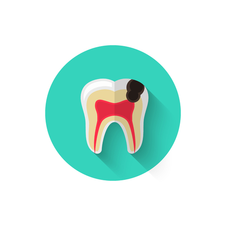 Tooth decay, caries illustrated in a flat style design of vector illustration. Minimalist icon on the topic of stomatology. Website and design for mobile applications and other your projects.