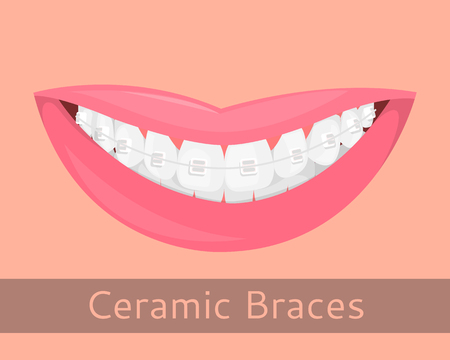 Dental braces, smiling lips in cartoon style isolated. Smile with braces, illustration on the topic of stomatology, orthodontics, teeth alignment bite correction, vector illustration for your projects