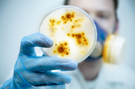 Science and Lab Research.A scientist holding a Petri Dish with Virus and bacteria cells. Stock Photo