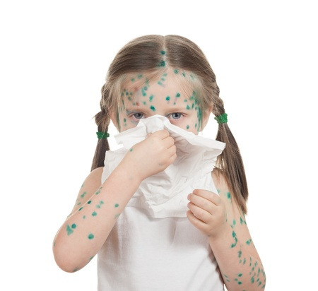 sick child. chickenpox. isolated Stock Photo - 18737991