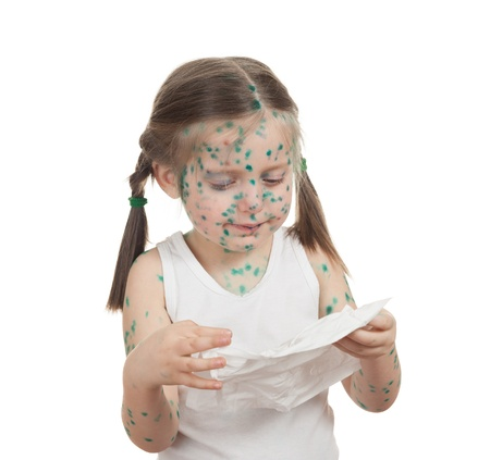 sick child. chickenpox. isolated Stock Photo
