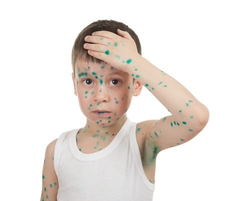varicella: sick child. chickenpox. isolated Stock Photo