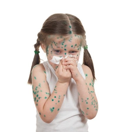 sick child suffer having a chickenpox Stock Photo - 19426771