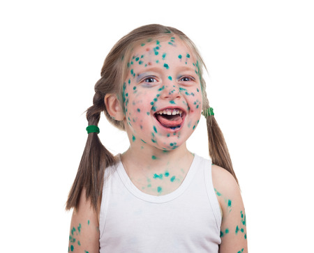 varicela: acnes en ni�os. varicela