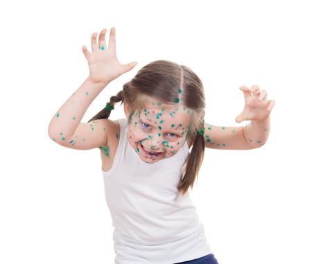 acnes on child. chickenpox photo
