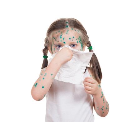 acnes on child. chickenpox Stock Photo - 22877176