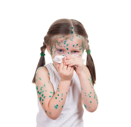 acnes on child. chickenpox Stock Photo - 22877179