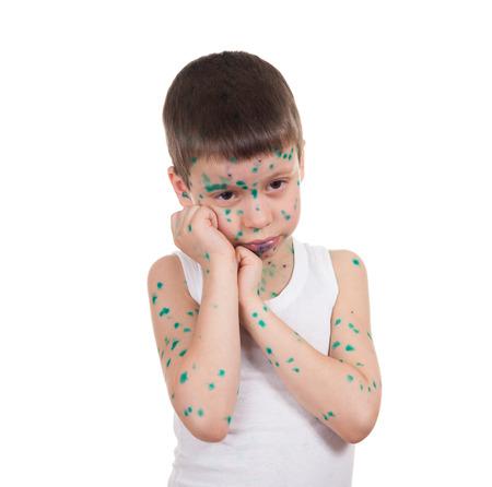 smallpox: acnes on child. chickenpox