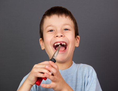 self operation: Boy simulates tooth removal with pliers