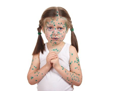malady: child has the virus on skin, white background Stock Photo