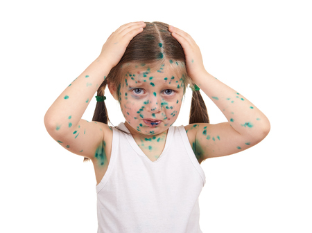 child has the virus on skin, white background Banque d'images
