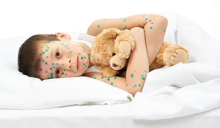 varicella: child has the virus on skin, white background Stock Photo