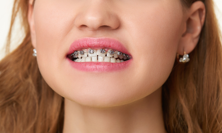 smile close up: Braces on teeth, beautiful woman face smile close up. Stock Photo