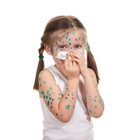 sick child has the virus on skin photo