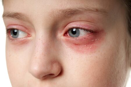 Allergic reaction, skin rash, close view portrait of a girl's face. Redness and inflammation of the skin in the eyes and lips. Immune system disease. Stockfoto