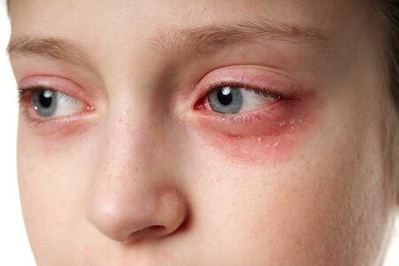 Allergische reactie, huiduitslag, close view portret van het gezicht van een meisje. Roodheid en ontsteking van de huid in de ogen en lippen. Immuunsysteem ziekte. Stockfoto