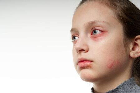Allergic reaction, skin rash, close view portrait of a girl's face. Redness and inflammation of the skin in the eyes and lips. Immune system disease. Stock Photo