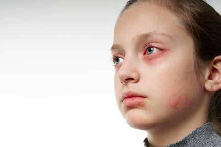 Reacción alérgica, erupción cutánea, retrato de vista cercana de la cara de una niña. Enrojecimiento e inflamación de la piel de ojos y labios. Enfermedad del sistema inmunológico. Foto de archivo
