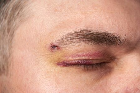 close view of a bruise near the eye, the face of a man with a hematoma