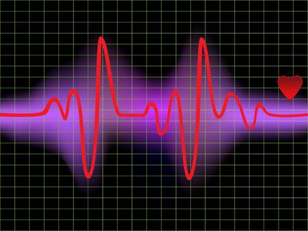 Heartbeat monitor with a heart Stock Photo - 7547547