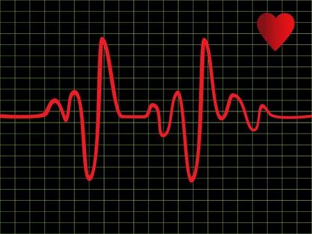heartbeat: Heart beat monitor or EKG