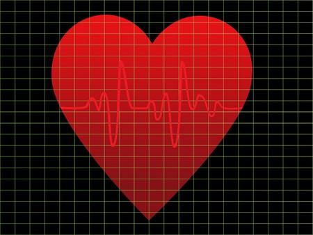 heart monitor: EKG or heart beat monitor Stock Photo