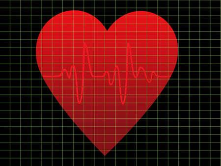 heart monitor: EKG or heart beat monitor Illustration