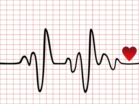 Heart beat monitor or EKG Vector