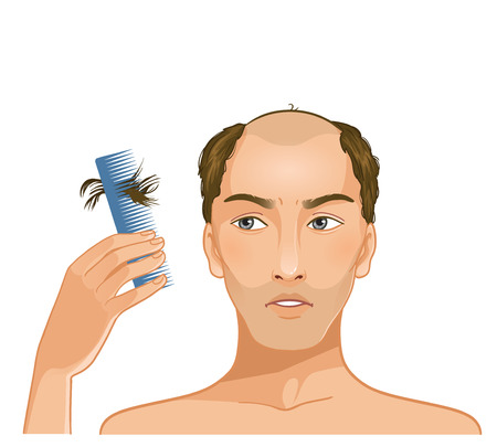 comb hair: Young baldheaded man with hair fall  Illustration