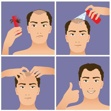Icons Set dans un style design plat avec le traitement des cheveux, des mesures pour prévenir la chute des cheveux Vecteurs