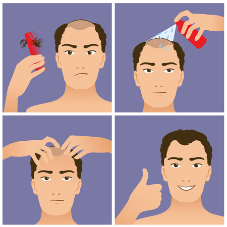 Icons set in flat design style with hair treatment, steps to prevent hair falling