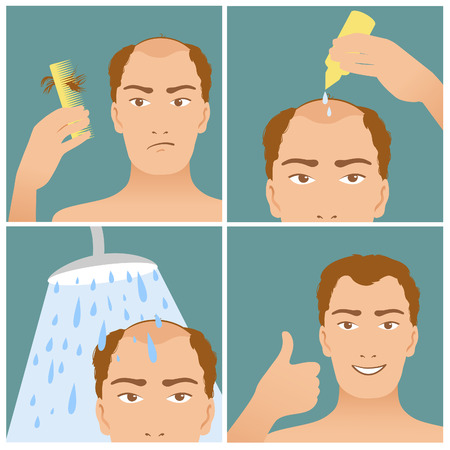 bald spot: Icons set in flat design style with hair treatment, steps to prevent hair falling