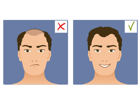 before: Set of two images with boy without and with hair, before and after, vector image