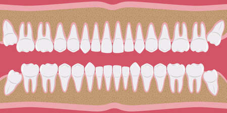 Healthy white human teeth in a row. Beautiful, even teeth with roots. The gums are cut to the bone. Structure of the jaw. Infographic elements for dentists and orthodontists. flat-style banner. Vector
