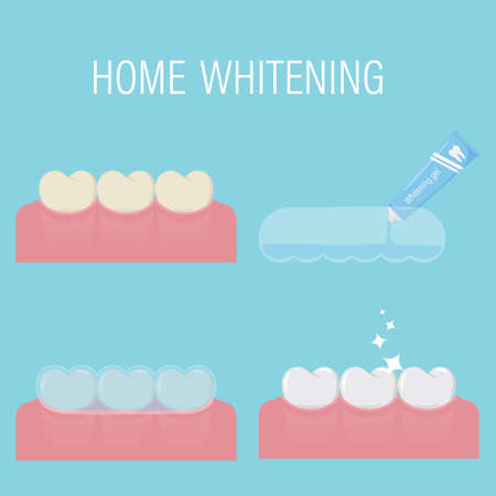 The concept of home teeth whitening From yellow to white. Consecutive stages of bleaching with gel and mouthguard at home.Before and after. Modern comatic procedure. Isolated vector illustration. Flat