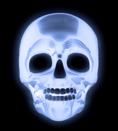 radiological: X-ray human head skull image.
