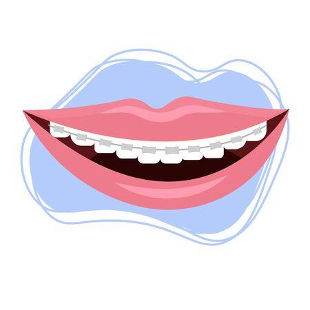 Smile with braces, brekets stock vector illustration isolated on white background. Stomatology, orthodontic, healthcare concept. Dental equipment for correction. White teeth, hygiene.
