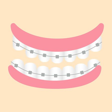 Gum, teeths with metallic braces isolated stock vector illustration. Graphic bright clipart, dental, orthodontic concept. Healthcare and medicine beauty.