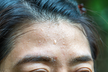 Close up sweat on woman forehead.